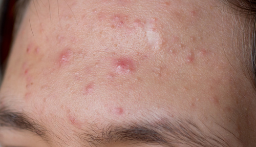 rosacea houston tx