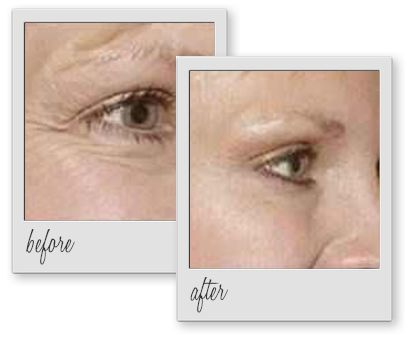 Crows Feet Wrinkles Botox Treatment Houston